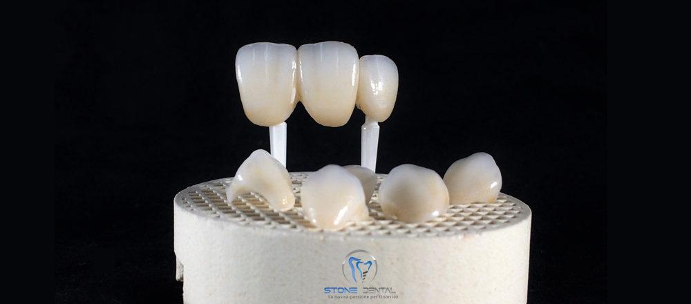 disilicato-di-litio-ceramica-integrale-faccette-in-ceramica