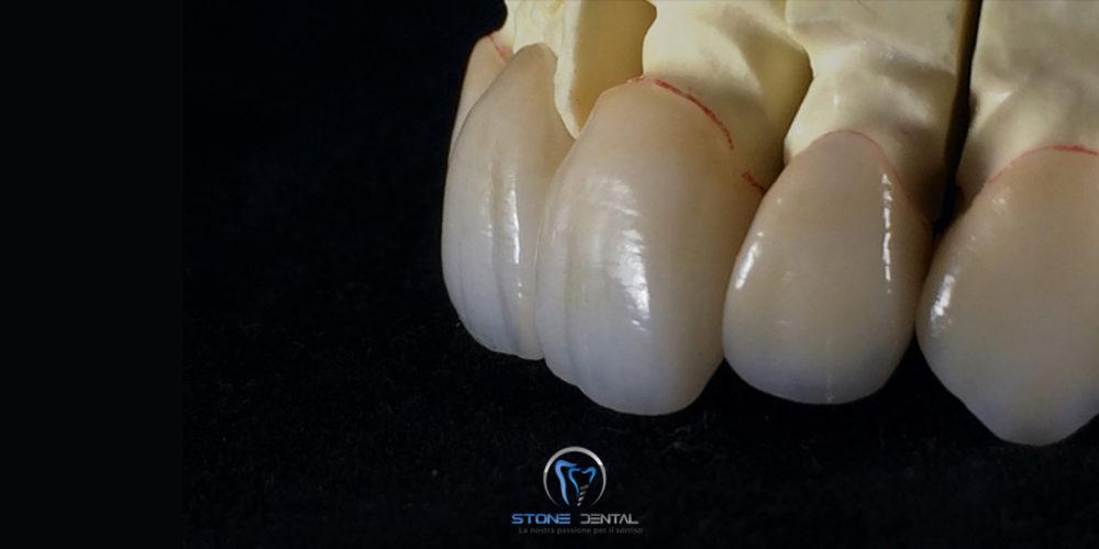 disilicato-di-litio-ceramica-integrale-faccette-in-ceramica-3